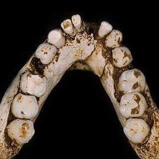 The Hobbit S Dental Work Seaarch Southeast Asian